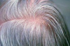 سفیدی موها
